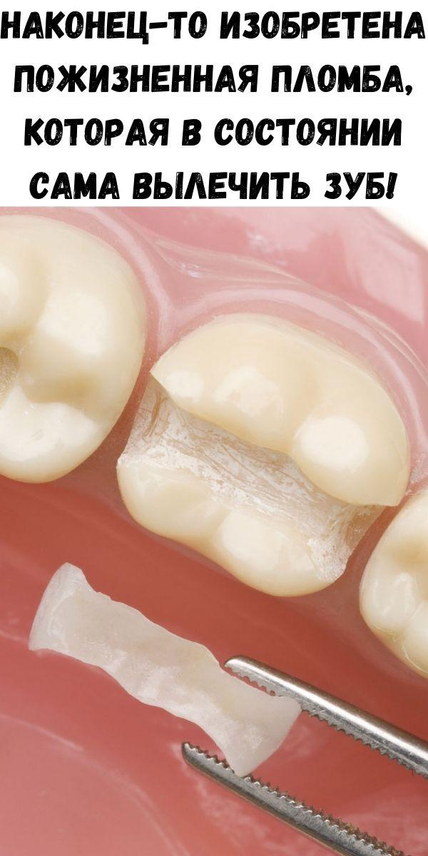 Наконец-то изобретена пожизненная пломба, которая в состоянии сама вылечить зуб!