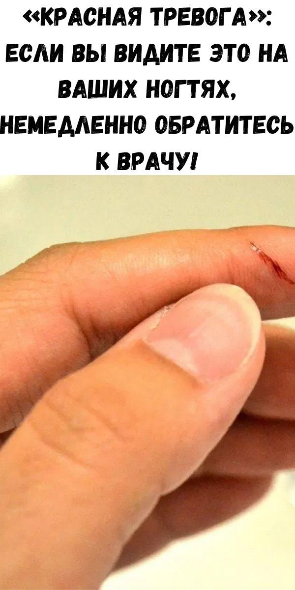 «Красная тревога»: Если вы видите это на ваших ногтях, немедленно обратитесь к врачу!