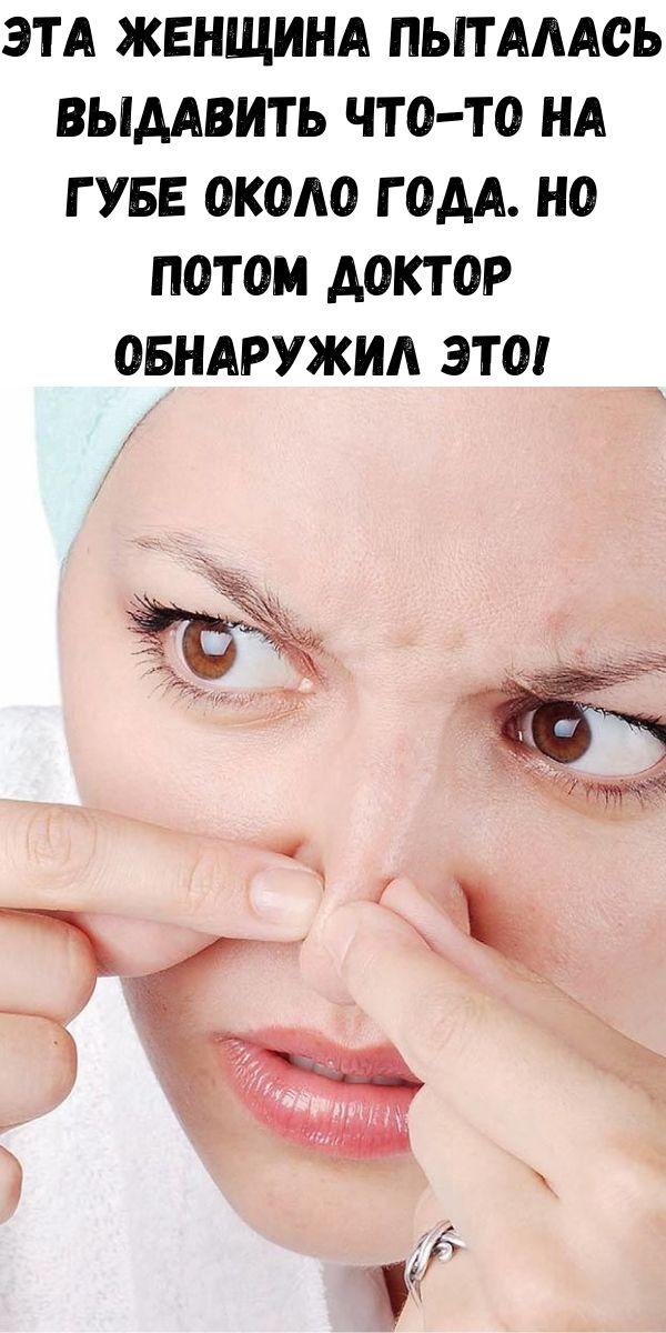 Эта женщина пыталась выдавить что-то на губе около года. Но потом доктор обнаружил ЭТО!