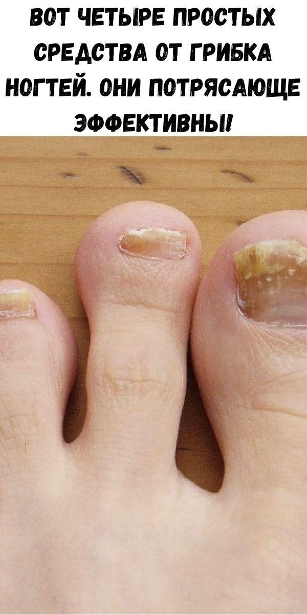 Вот четыре простых средства от грибка ногтей. Они потрясающе эффективны!