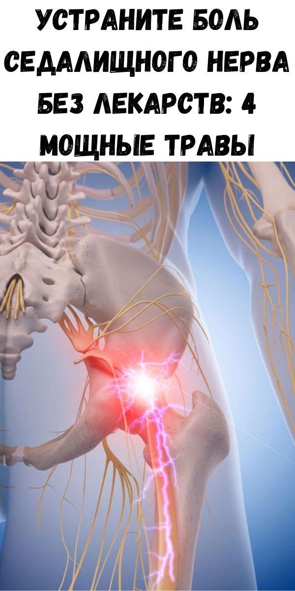 Устраните боль седалищного нерва без лекарств: 4 мощные травы