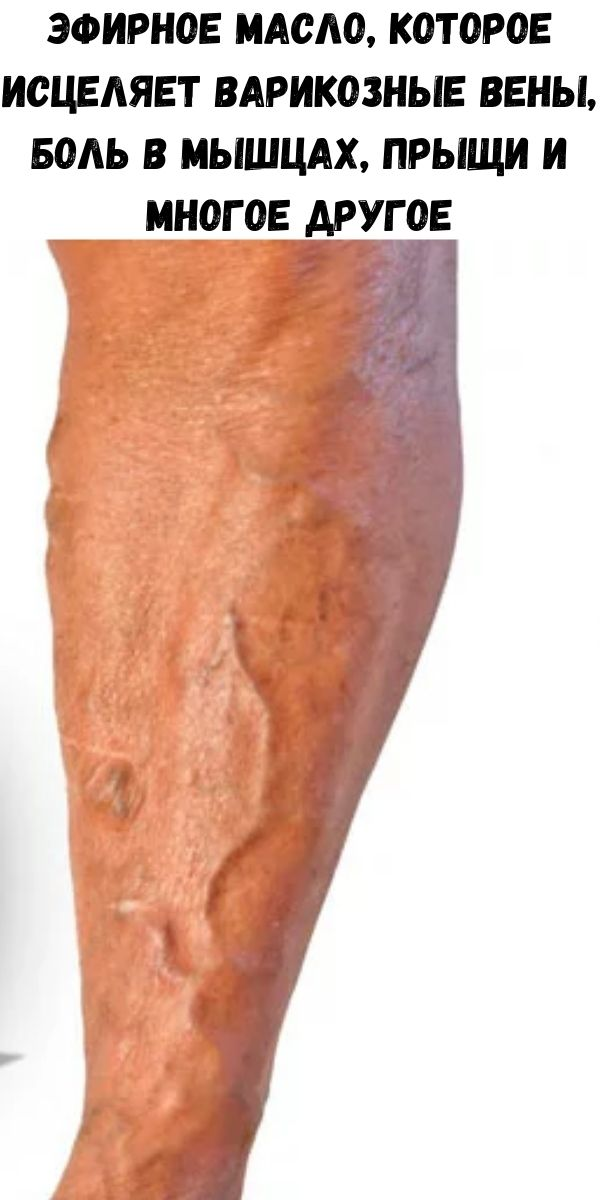 Эфирное масло, которое исцеляет варикозные вены, боль в мышцах, прыщи и многое другое