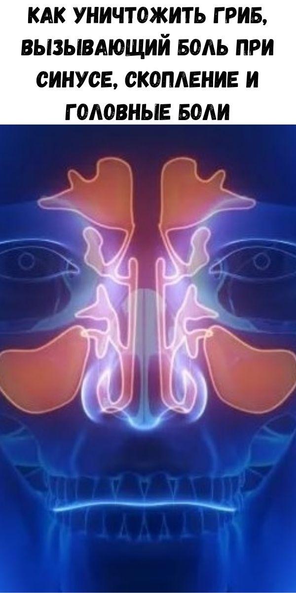 Как уничтожить гриб, вызывающий боль при синусе, скопление и головные боли