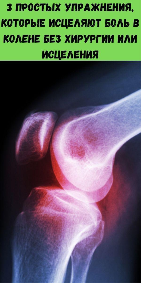 3 простых упражнения, которые исцеляют боль в колене без хирургии или исцеления