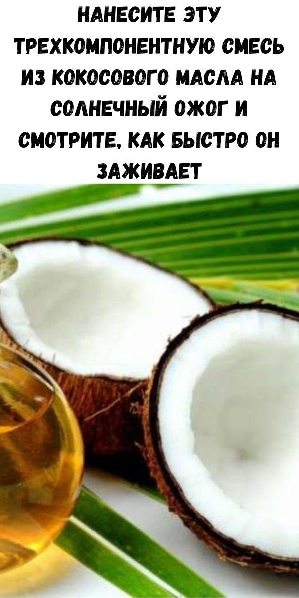Нанесите эту трехкомпонентную смесь из кокосового масла на солнечный ожог и смотрите, как быстро он заживает