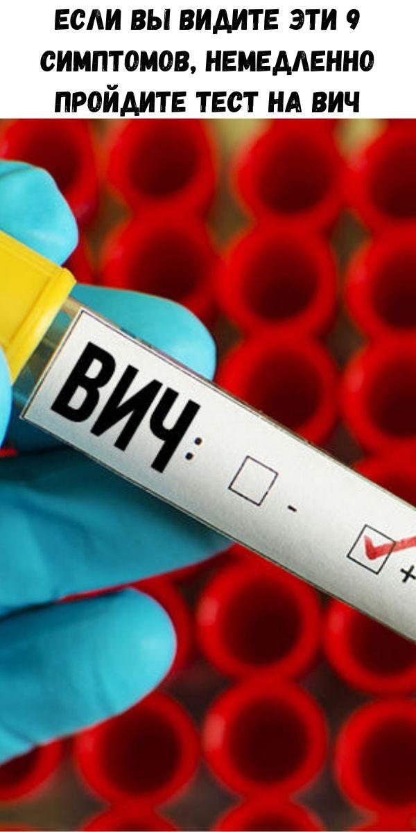 Если вы видите эти 9 симптомов, немедленно пройдите тест на ВИЧ