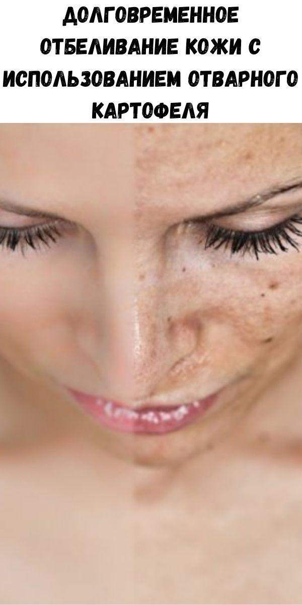 Долговременное отбеливание кожи с использованием отварного картофеля
