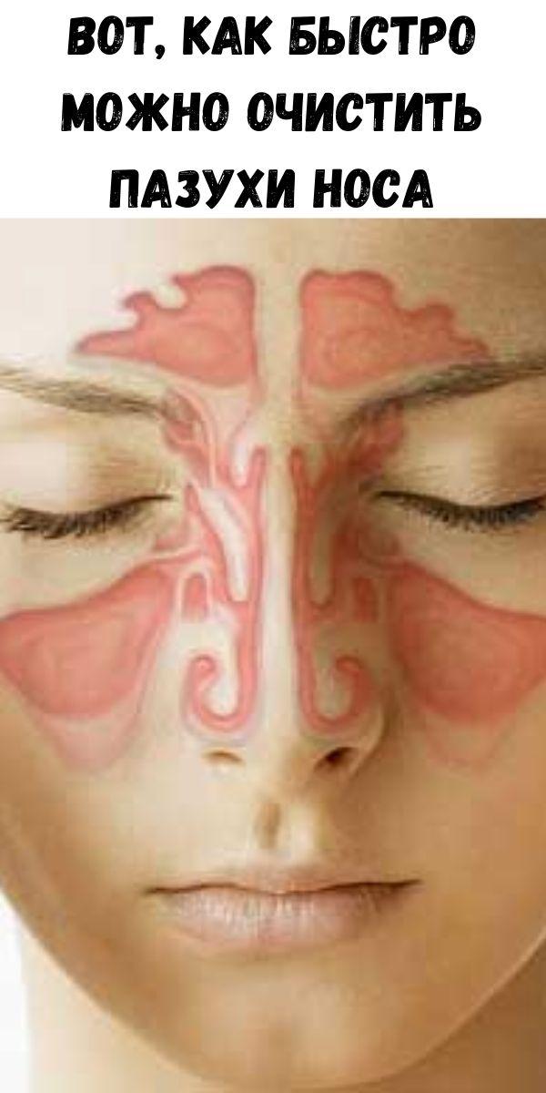 Вот, как быстро можно очистить пазухи носа