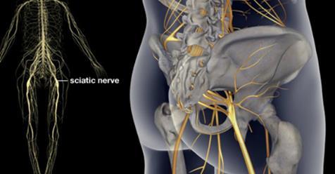 3 упражнения для лечения боли седалищного нерва, бедер и спины