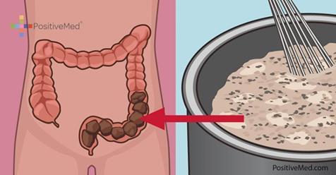 Домашнее очищение кишечника, которое очисит его от токсичных отходов