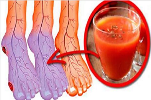 Да, вы можете улучшить плохую циркуляцию и холодные ноги