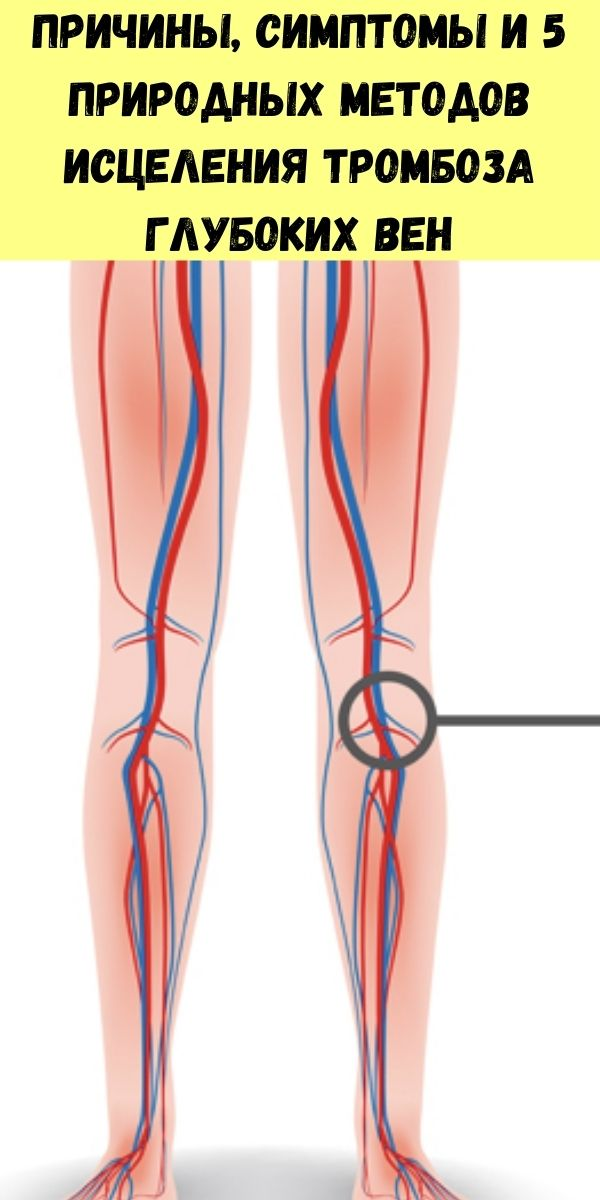 Причины, симптомы и 5 природных методов исцеления тромбоза глубоких вен