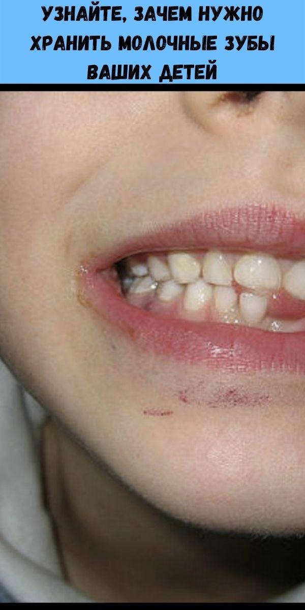 Узнайте, зачем нужно хранить молочные зубы ваших детей