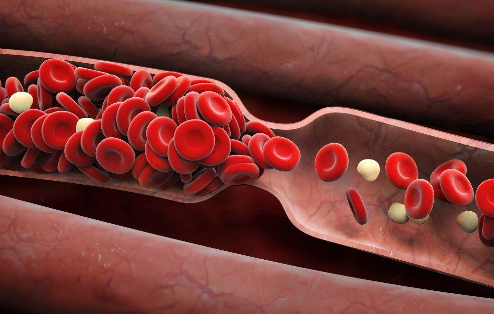 8 ранних предупреждающих признаков сгустка крови, которые никогда нельзя игнорировать
