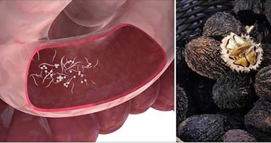 10 симптомов паразитов и 7 продуктов для их удаления!