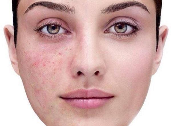 Следуйте этим 4 шагам, когда кожа лица шелушится