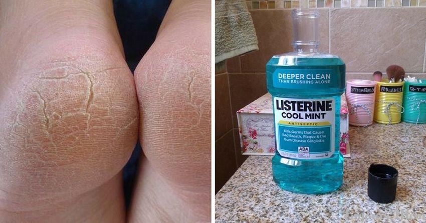 10 удивительных применений листерина, о которых должна знать каждая женщина
