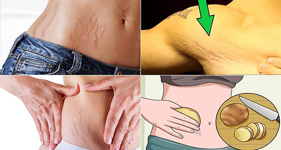Избавьтесь от растяжек на коже с помощью этих 6 натуральных средств!