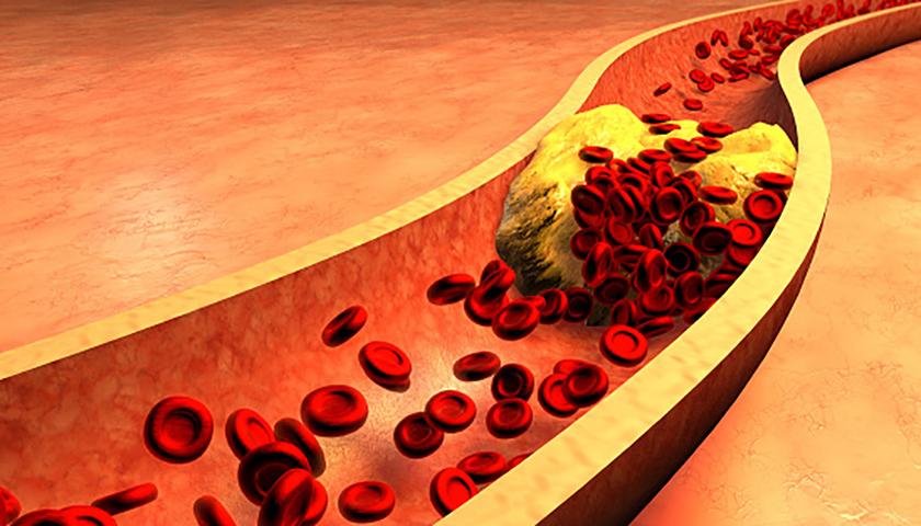 Принимайте 4 столовые ложки этого напитка каждое утро и попрощайтесь с забитыми артериями, высоким артериальным давлением и плохим холестерином!