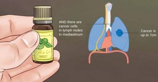 Вот, что онкологи не расскажут вам об эфирных маслах