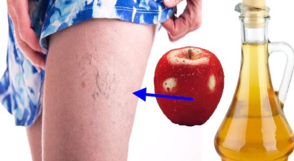 Используйте яблочный уксус таким способом, и вы сможете устранить варикозное расширение вен, похудеть и многое другое