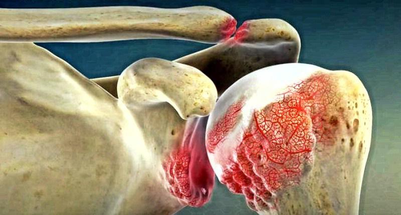 10 симптомов артрита: как предупредить боли суставов?