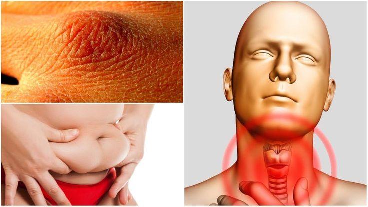 7 ранних предупреждающих признаков неправильной работы щитовидной железы, которые никогда нельзя игнорировать