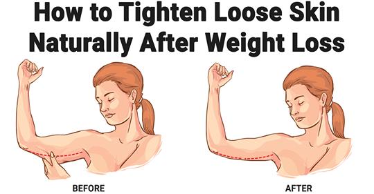 Как подтянуть кожу после похудения естественным способом