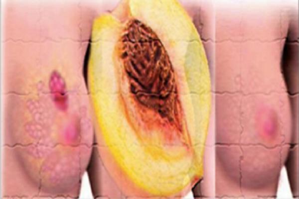 Сохраните: У меня был рак молочной железы, и этот плод помог мне восстановиться