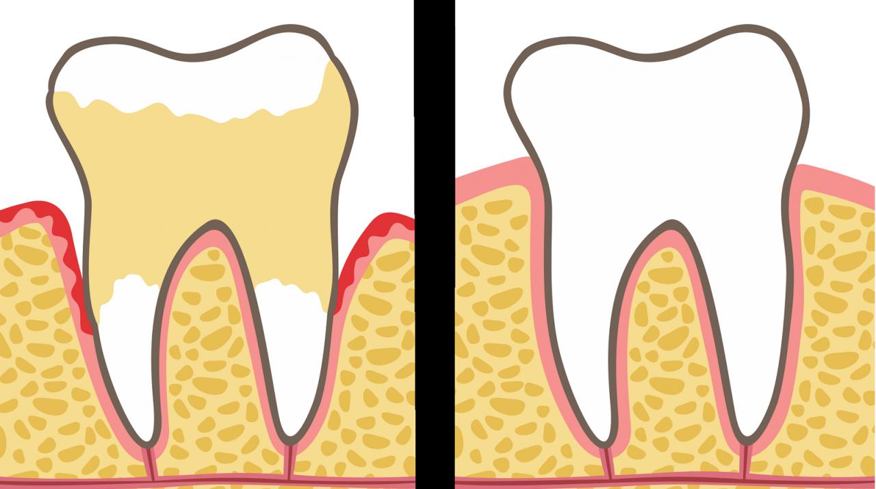 Стоматологи объясняют 7 привычек, которые разрушают ваши зубы и десны (и как их исправить)