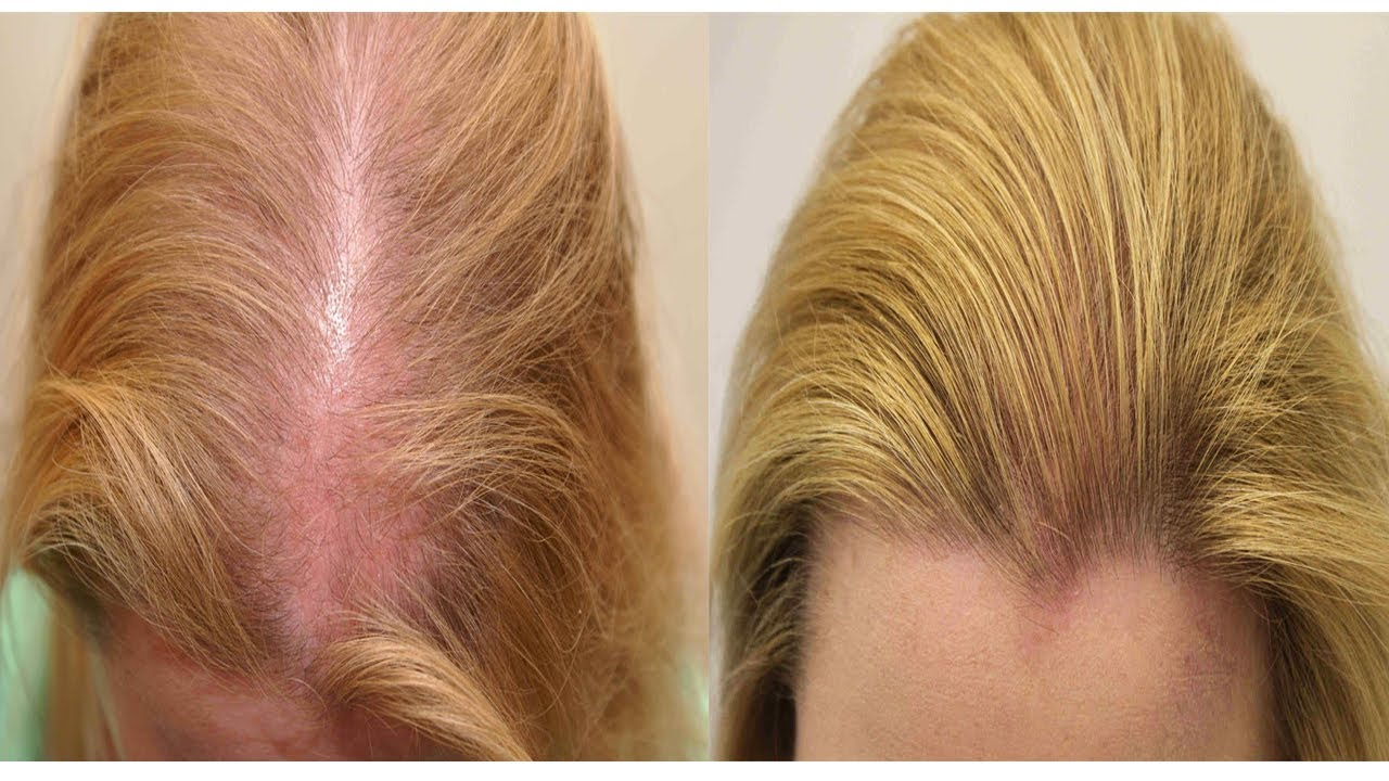 Это натуральное льняное средство укрепит ваши волосы, сделает их более здоровыми и густыми!