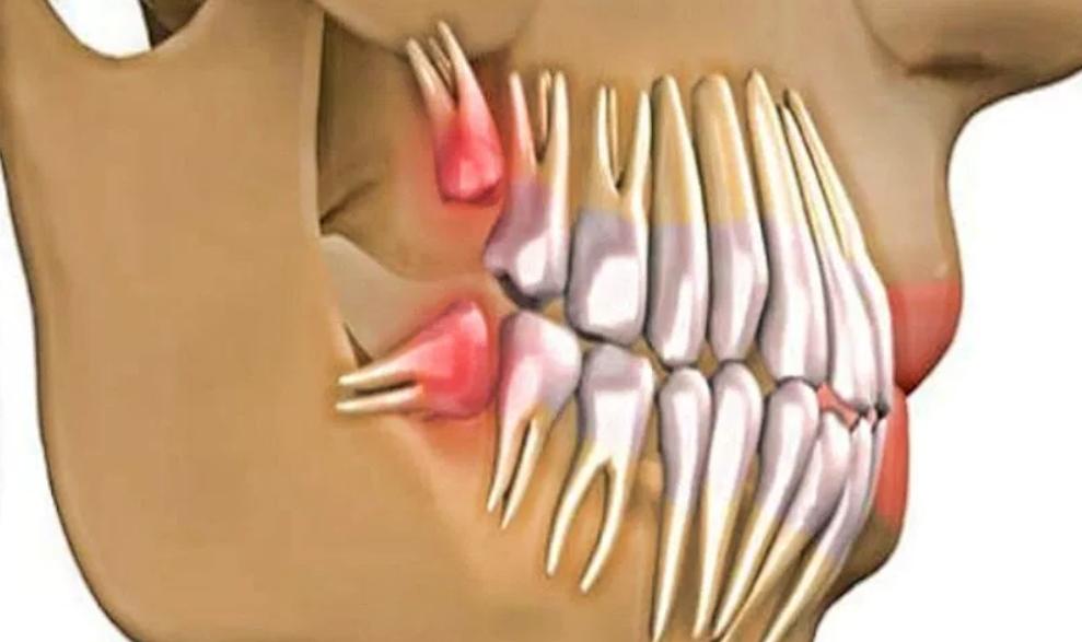 Как вырастить новые живые зубы всего за 9 недель