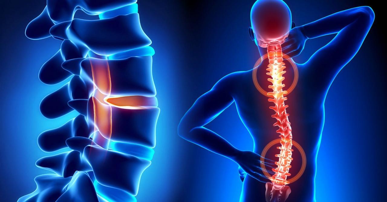 Как остеохондроз связан с нашим общим состоянием здоровья