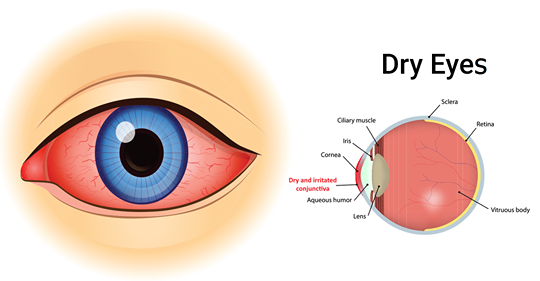 4 простых способа природного лечения сухости глаз