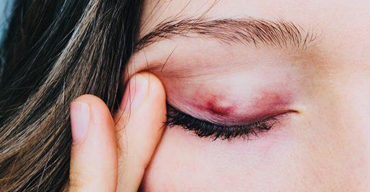 8 признаков ячменя на глазах