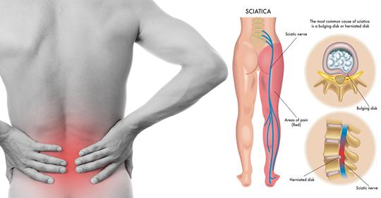 8 растяжек ишиаса, чтобы предотвратить и облегчить боль в пояснице