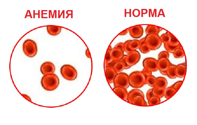 8 предупреждающих признаков анемии