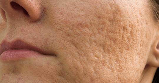 7 эффективных способов избавления от шрамов после акне
