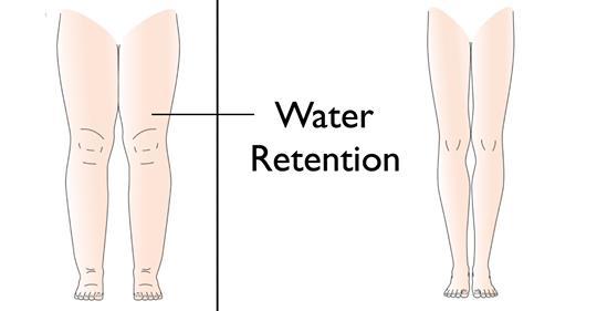 5 причин, по которым ваше тело задерживает воду (и как ее избежать)