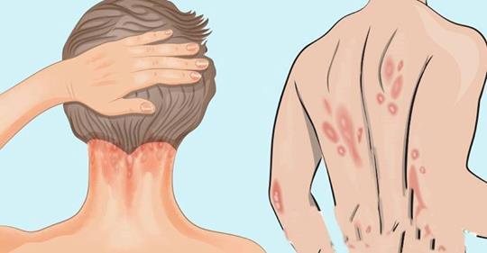 Псориаз: симптомы, причины и важный витамин, которого вам не хватает
