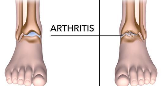 5 видов пищи, которые помогают избавиться от боли при артрите