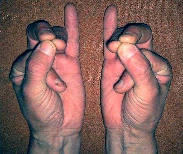 Сложите пальцы в такой позиции - это может спасти вам жизнь!