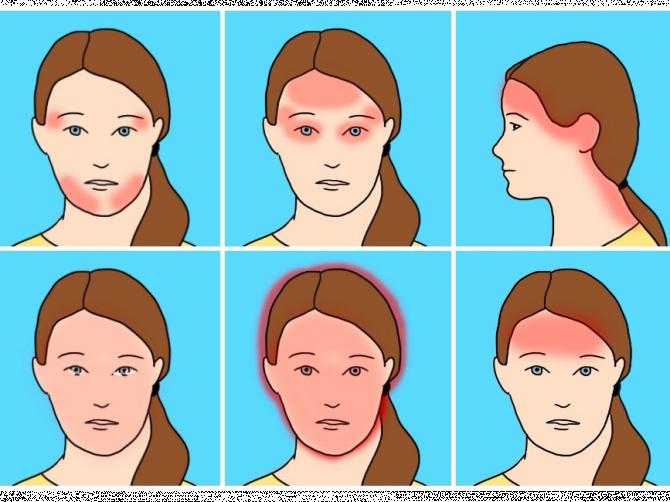 Врачи рассказали о 4 худших типах головных болей (и как их остановить)