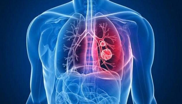 10 ранних признаков рака легких. Никогда не игнорируйте!