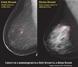 Как выглядит рак молочной железы на маммограмме?