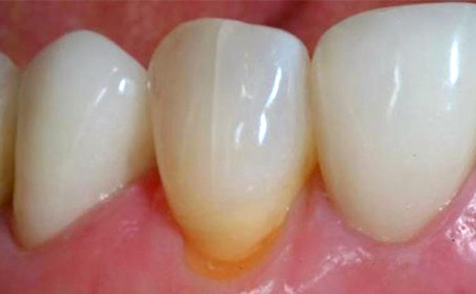 Как узнать, что у вас трещины на зубах?