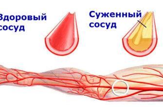 Чистые сосуды: 5 золотых рецептов от травника. Лечение атеросклероза
