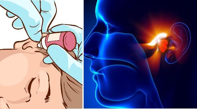 Удалите ушную серу и избавьтесь от ушной инфекции всего с этими двумя ингредиентами!